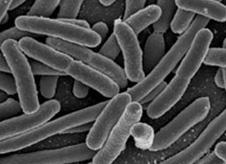 E. coli bacteria (http://www.bbc.co.uk/schools/gcsebitesize/science/images/biecoli.jpg)
