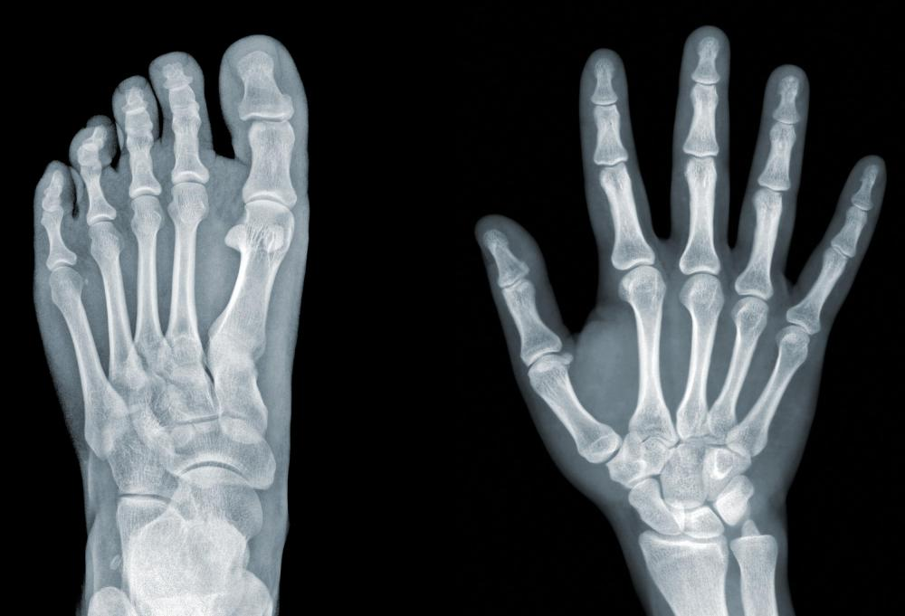 (http://images.wisegeek.com/foot-and-hand-xray.jpg)