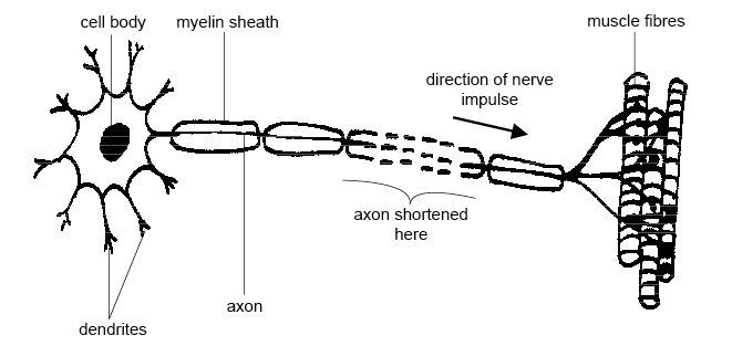 (http://upload.wikimedia.org/wikipedia/commons/5/5a/Anatomy_and_physiology_of_animals_Motor_neuron.jpg)