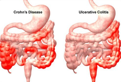 Image result for crohns disease (http://images.onhealth.com/images/slideshow/crohns-disease-s5-illustration-of-crohns-disease-and-ulcerative-colitis.jpg)
