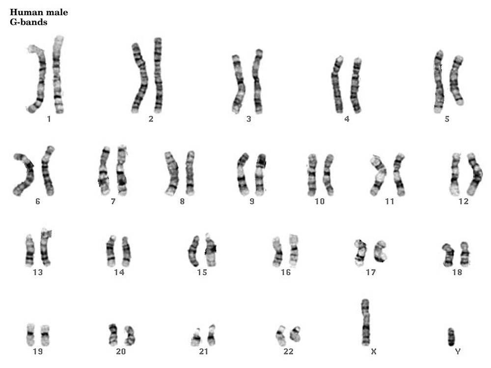 (http://www.pathology.washington.edu/galleries/Cytogallery/images/mgk.jpg)
