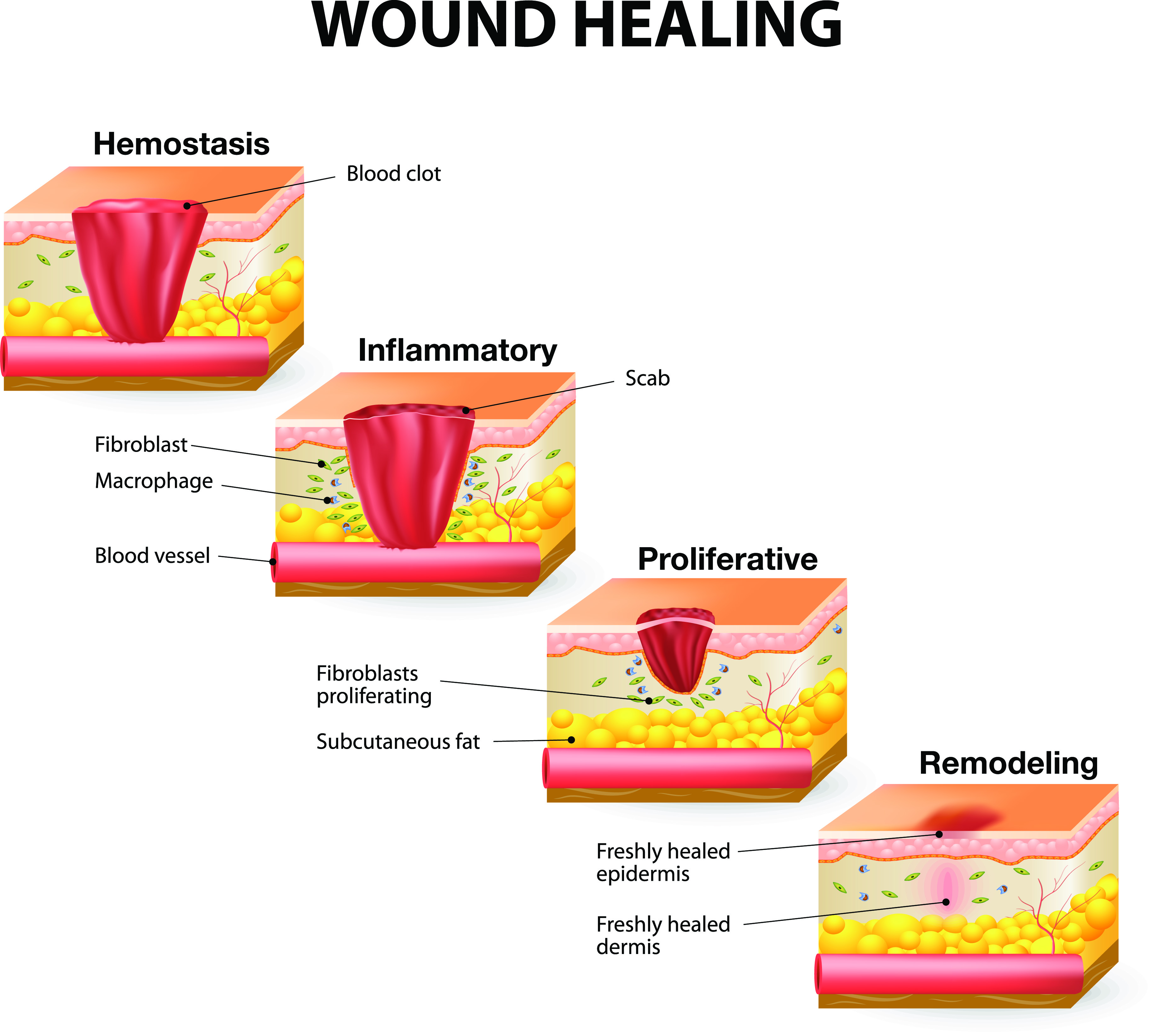(http://www.shieldhealthcare.com/community/wp-content/uploads/2015/07/Stages-of-Healing_image.jpg)