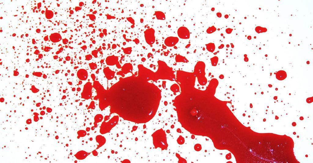 (http://3.bp.blogspot.com/-J1wym20Vw6g/Tm8G1cSYh2I/AAAAAAAABtc/IdDcuL35d6Y/s1600/blood_stain.jpg)