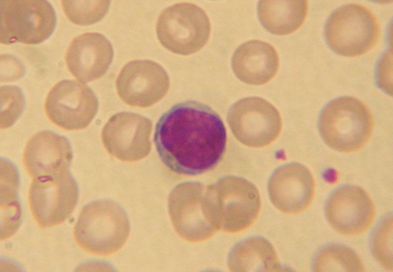 File:Lymphocyte2.jpg (http://upload.wikimedia.org/wikipedia/commons/thumb/1/17/Lymphocyte2.jpg/800px-Lymphocyte2.jpg)
