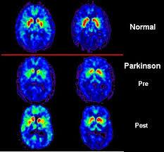 (http://tbn3.google.com/images?q=tbn:5sX70S3TU9diEM:http://upload.wikimedia.org/wikipedia/commons/8/87/PET_scan_Parkinson%27s_Disease.jpg)