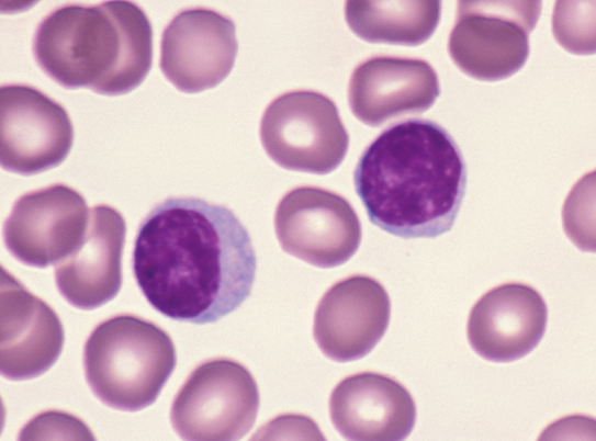 (http://www.pathologystudent.com/wp-content/uploads/2010/07/normal-lymphs.jpg)