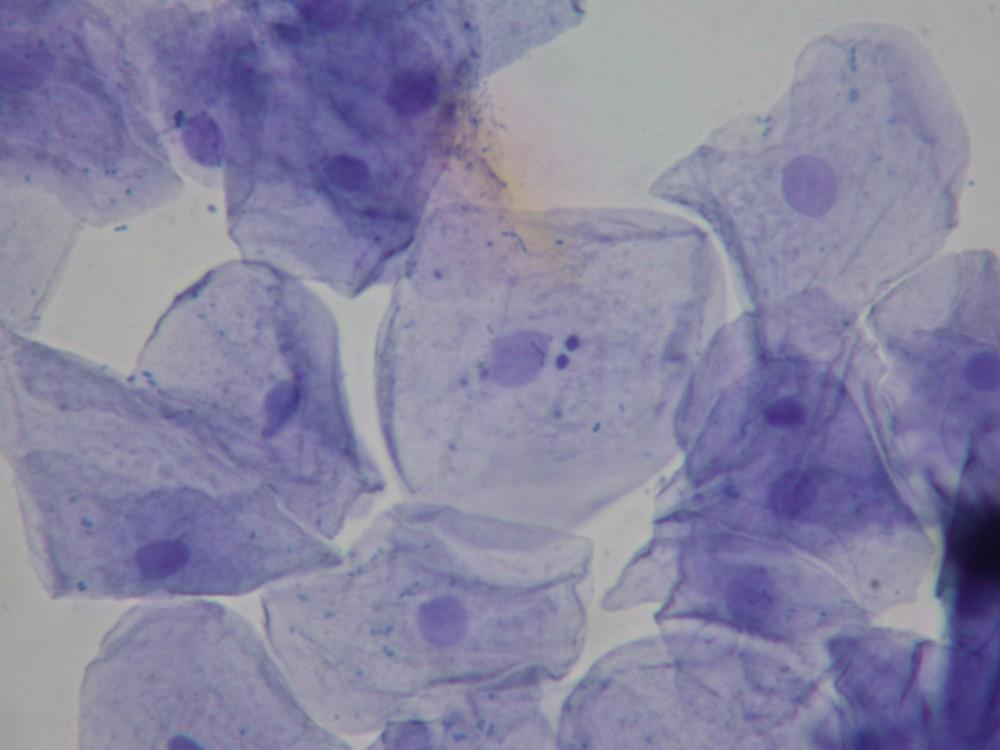 (http://faculty.kutztown.edu/friehauf/science_outreach/cheek_cells_005.jpg)