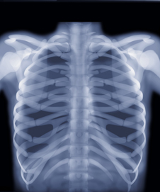 the x-ray shows the bones of a human chest in bright white light (http://www.bbc.co.uk/schools/gcsebitesize/science/images/ph_waves06.jpg)