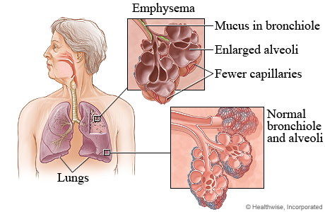 (http://emphysemasymptoms0.files.wordpress.com/2011/12/emphysema.jpg)