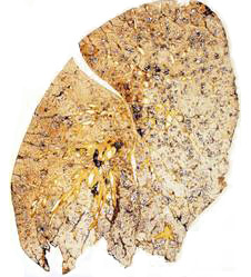 the lung is tinged yellow and has black tar deposits (http://www.bbc.co.uk/schools/gcsebitesize/science/images/bilungs_b.jpg)