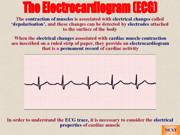 Preview of A2 Biology: ECG