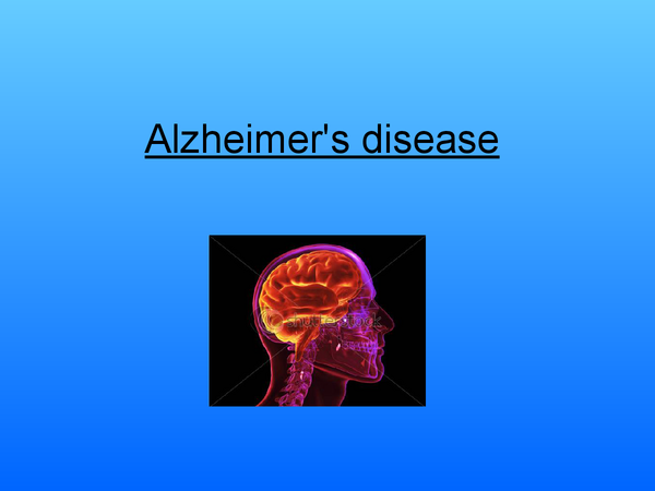 Preview of Alzheimers Disesase