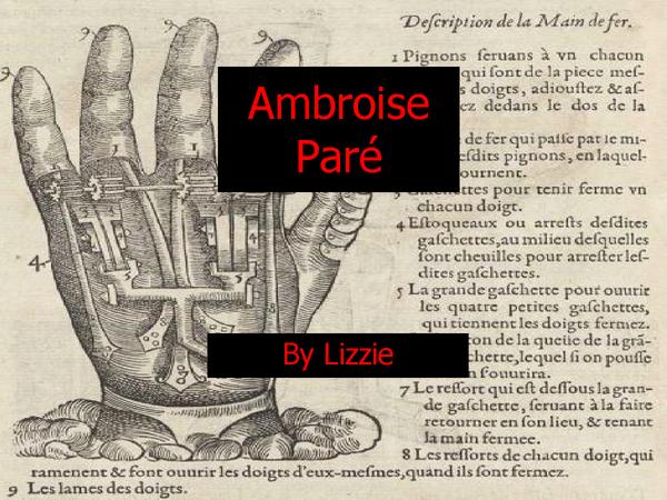 Preview of Ambroise Paré 5 Greatest Achievements.