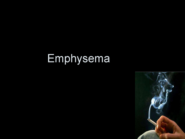 Preview of Biology unit 1 A level Emphysema