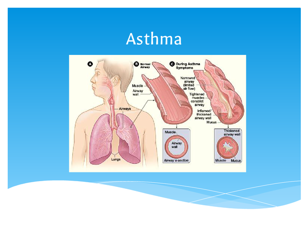 Preview of Causes and Effects of Asthma