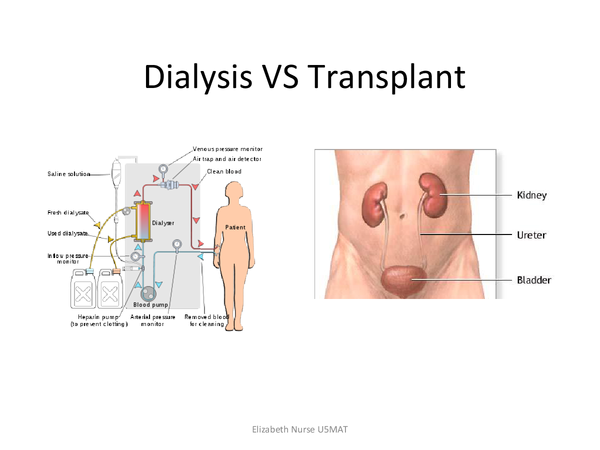 Preview of Dialysis VS Transplant
