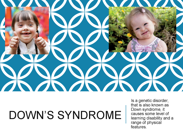 Preview of Down's Syndrome