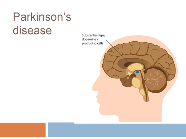 Preview of Edexcel SNAB Parkinson's disease