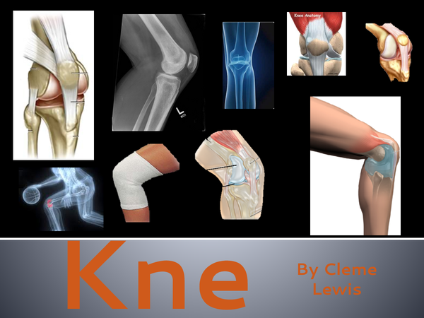 Preview of Knee Joint