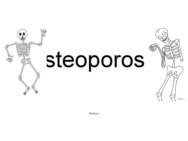 Preview of Osteoporosis - AS OCR BIOLOGY F212