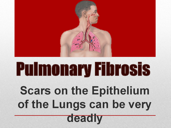 Preview of Pulmonary Fibrosis