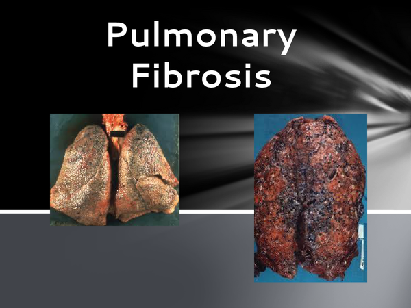 Preview of pulmonary fibrosis power point
