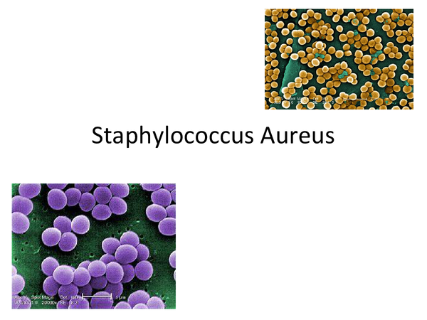 Preview of Staphylococcus Aureus